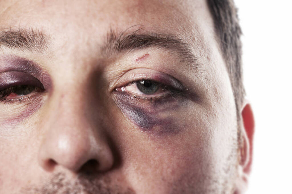 blaues Auge, Auge, Schmerz, davonkommen, crash, Unfall, verletzt, aua, http://www.shutterstock.com/de/pic-106680602/stock-photo-eye-injury-male-with-black-eye-isolated-on-white-man-after-accident-or-fight-with-bruise.html , © (www.shutterstock.com) (25.07.2014)