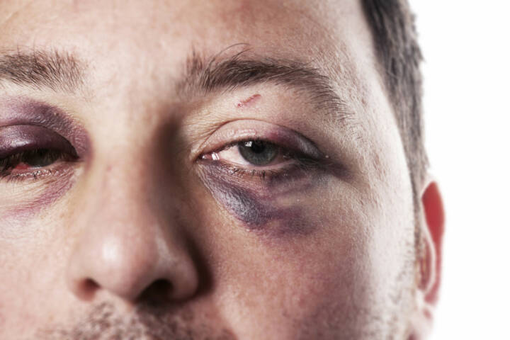 blaues Auge, Auge, Schmerz, davonkommen, crash, Unfall, verletzt, aua, http://www.shutterstock.com/de/pic-106680602/stock-photo-eye-injury-male-with-black-eye-isolated-on-white-man-after-accident-or-fight-with-bruise.html