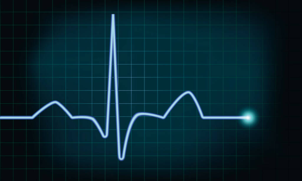 Herzschlag, Leben, Lebenszeichen, Kurve, Amplitude, http://www.shutterstock.com/de/pic-140844907/stock-vector-detailed-illustration-of-of-a-heartbeat-curve-background-eps-vector-gradient-mesh-included.html , © www.shutterstock.com (29.05.2017)