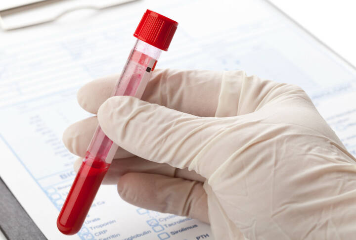 Blut, Blutprobe, Latex Handschuh http://www.shutterstock.com/de/pic-173050052/stock-photo-hand-with-latex-glove-holding-blood-sample-vial-in-front-of-blood-test-form.html