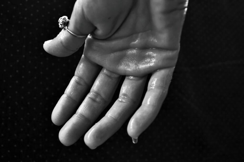 Schwitzen, Schweiß, Hand (Bild: Pixabay/BarbaraBonanno https://pixabay.com/de/hand-hyperhidrose-schwitzen-1502242/ )    (28.04.2017)