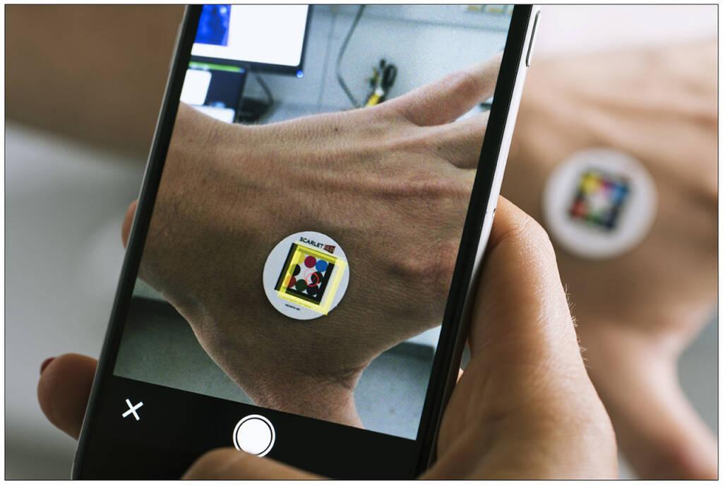 Digital Health Startup expandiert mit Crowdfunding auf Green Rocket. as Unternehmen mit Sitz in Wien und in Boston/USA ermöglicht mittels Handy-App die schnelle und objektive Analyse bei rund 3.000 unterschiedlichen Hautkrankheiten. Copyright: Scarletred  (03.10.2018)