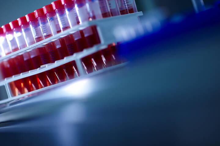 Valneva, Labor, Impfstoff, Credit: Valneva